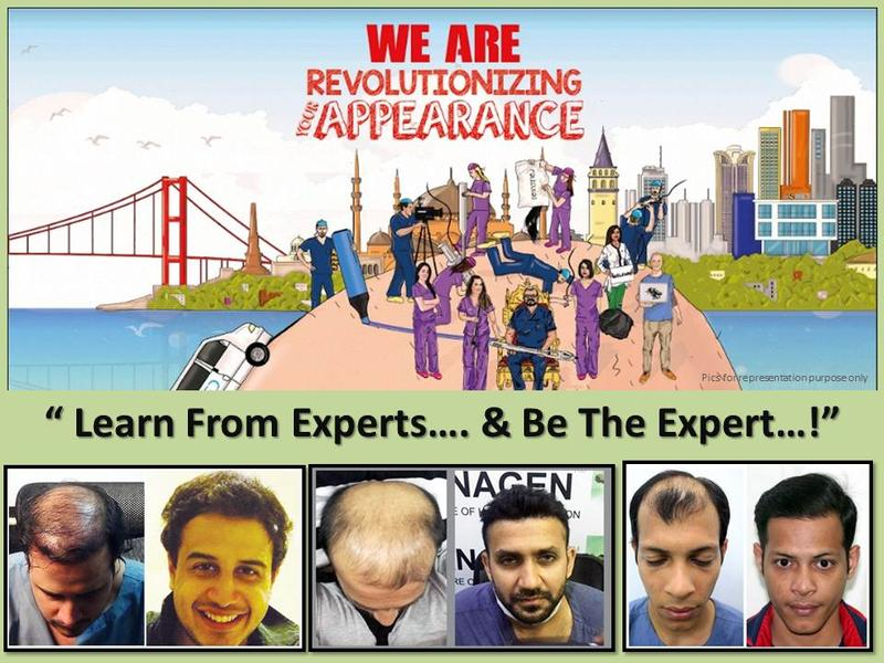 Anagen Hair Transplant Clinics Franchise Opportunity